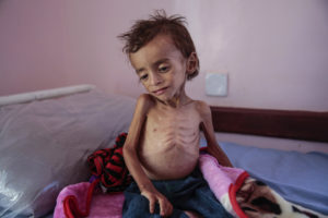 In this Oct. 1 2018 photo a malnourished boy sits on a hospital bed at the Aslam Health Center Hajjah Yemen. AP Photo Hani Mohammed